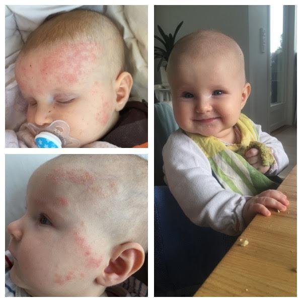 lapsen allergian hoito