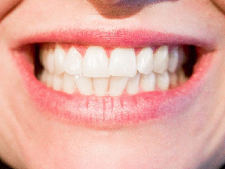 Pitka ponnistusaika synnytyksessa voi olla yhteydessä hampaiden narskutteluun